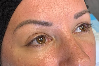3D Microblading/ Henna Brows Gallery - Patient 55482780 - Image 1