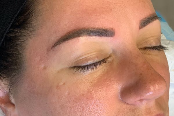 3D Microblading/ Henna Brows Gallery - Patient 55482780 - Image 2