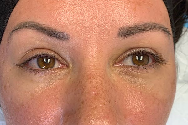 3D Microblading/ Henna Brows Gallery - Patient 55482780 - Image 3