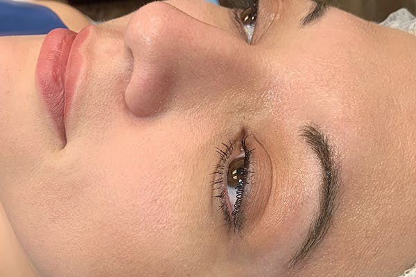 3D Microblading/ Henna Brows Gallery - Patient 55482778 - Image 1