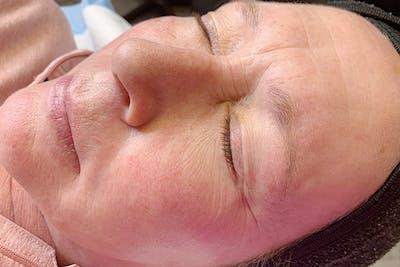 Permanent Makeup Gallery - Patient 55482885 - Image 1