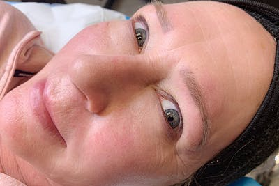 Permanent Makeup Gallery - Patient 55482885 - Image 2