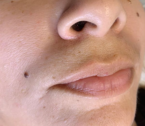 Permanent Makeup Gallery - Patient 57578638 - Image 1