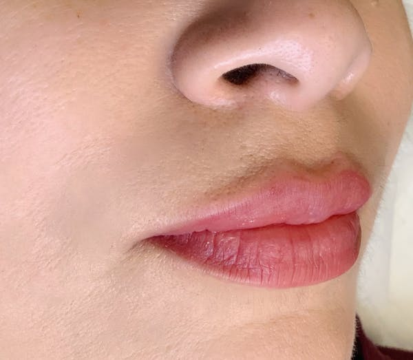 Permanent Makeup Gallery - Patient 57578638 - Image 2
