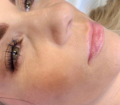 Permanent Makeup Gallery - Patient 57578639 - Image 1