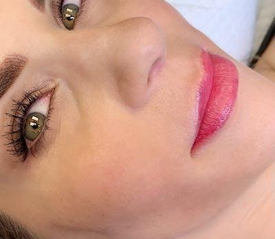 Permanent Makeup Gallery - Patient 57578639 - Image 2