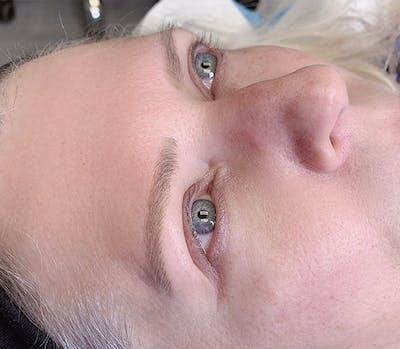 Permanent Makeup Gallery - Patient 57578640 - Image 1