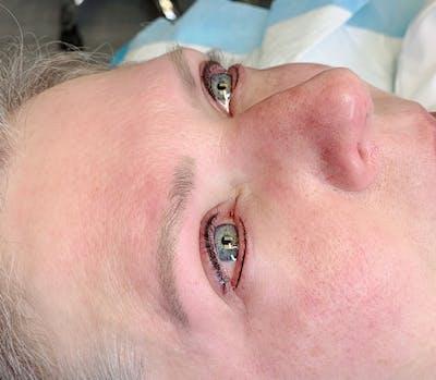 Permanent Makeup Gallery - Patient 57578640 - Image 2