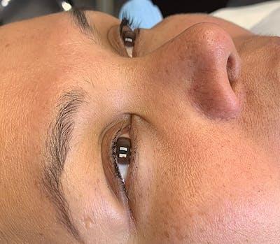 Permanent Makeup Gallery - Patient 57578641 - Image 1