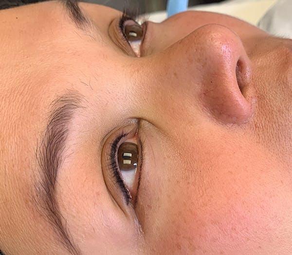 Permanent Makeup Gallery - Patient 57578641 - Image 2