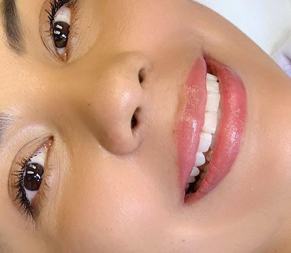 Permanent Makeup Gallery - Patient 57578642 - Image 3
