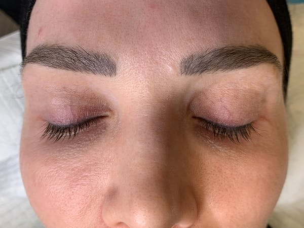 Permanent Makeup Gallery - Patient 57578643 - Image 1