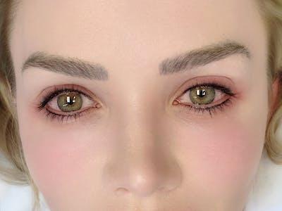 Permanent Makeup Gallery - Patient 57578643 - Image 2