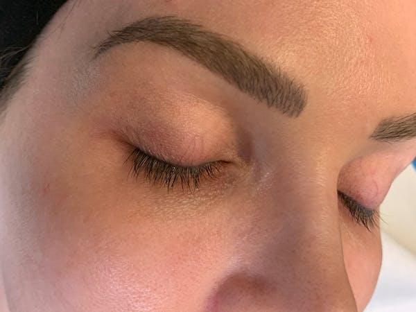 Permanent Makeup Gallery - Patient 57578643 - Image 3