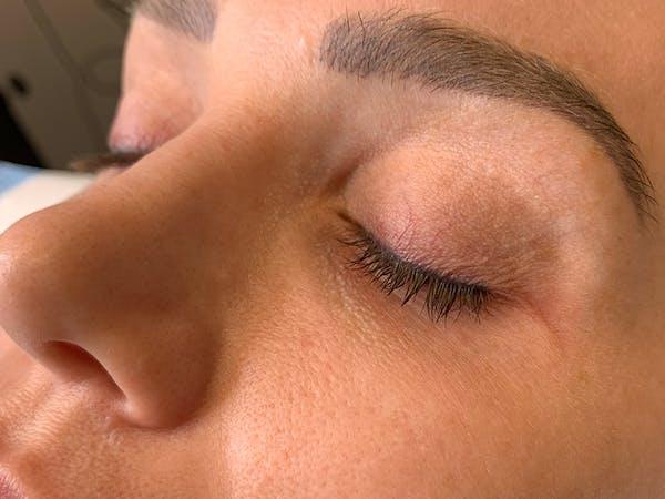 Permanent Makeup Gallery - Patient 57578643 - Image 5