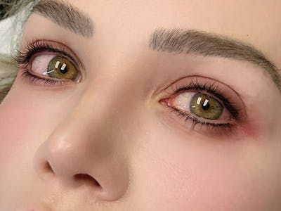 Permanent Makeup Gallery - Patient 57578643 - Image 6