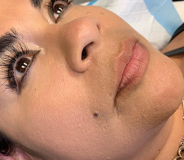 Permanent Makeup Gallery - Patient 64195239 - Image 1