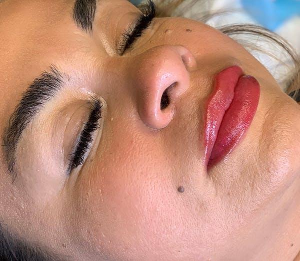 Permanent Makeup Gallery - Patient 64195239 - Image 2