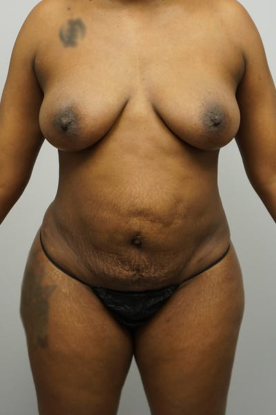 Tummy Tuck Gallery - Patient 67095065 - Image 1