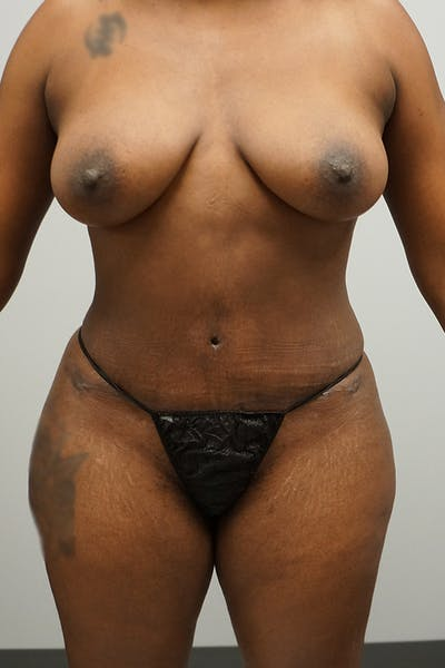Tummy Tuck Gallery - Patient 67095065 - Image 2