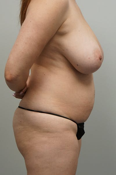Tummy Tuck Gallery - Patient 67095066 - Image 1