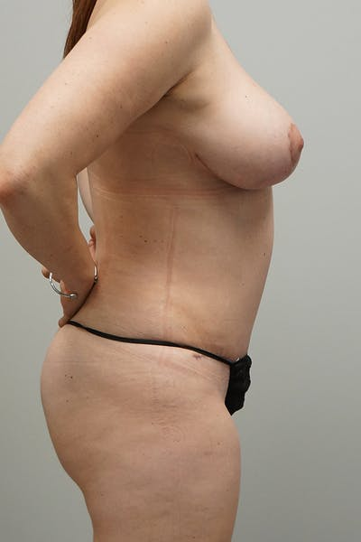 Tummy Tuck Gallery - Patient 67095066 - Image 2