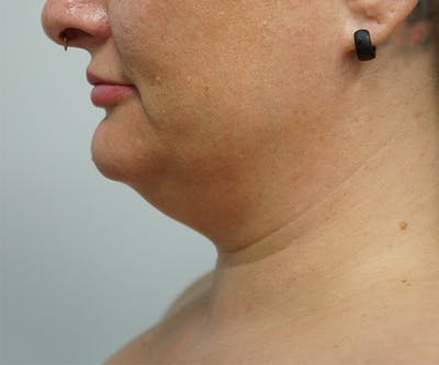 Liposuction Gallery - Patient 67095352 - Image 1