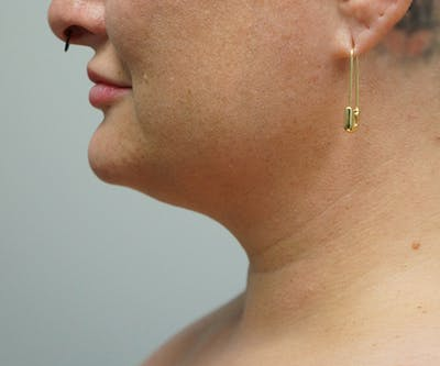 Liposuction Gallery - Patient 67095352 - Image 2