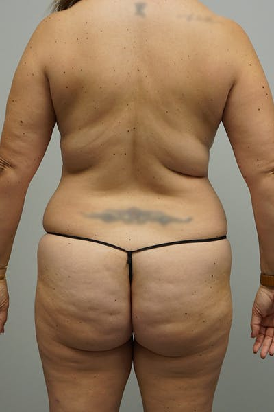 Liposuction Gallery - Patient 67095353 - Image 1