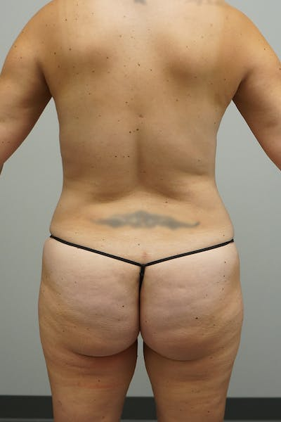 Liposuction Gallery - Patient 67095353 - Image 2
