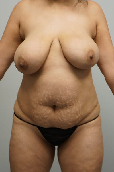 Liposuction Gallery - Patient 67095354 - Image 1