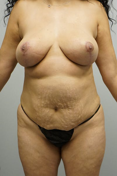 Liposuction Gallery - Patient 67095354 - Image 2