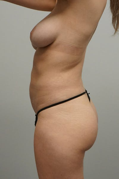 Liposuction Gallery - Patient 67095355 - Image 2