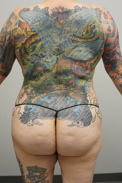 Liposuction Gallery - Patient 67095357 - Image 2