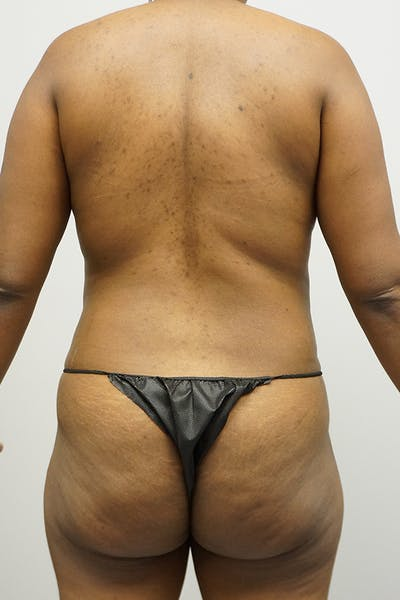 Liposuction Gallery - Patient 67095359 - Image 1
