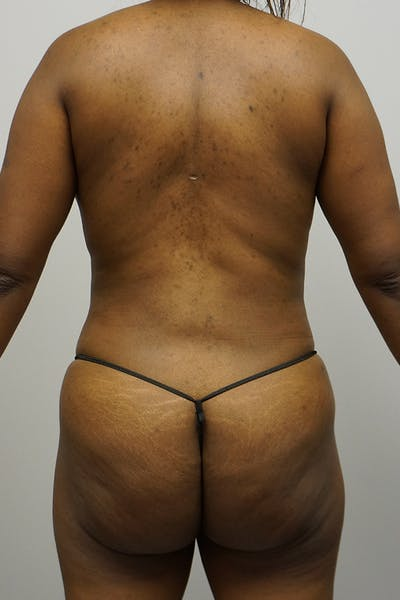 Liposuction Gallery - Patient 67095359 - Image 2