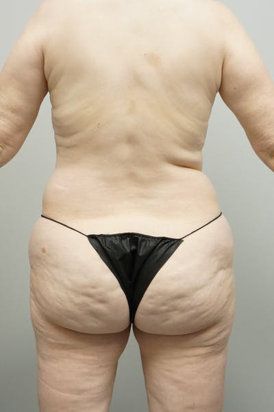Liposuction Gallery - Patient 67095360 - Image 1