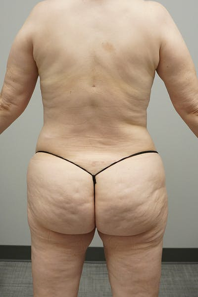 Liposuction Gallery - Patient 67095360 - Image 2