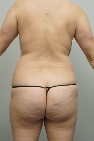 Liposuction Gallery - Patient 67095361 - Image 1