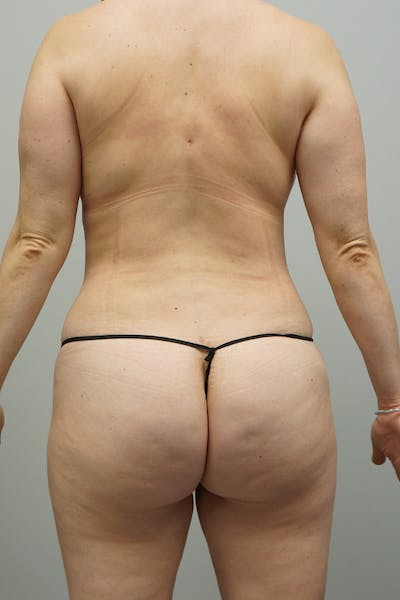 Liposuction Gallery - Patient 67095361 - Image 2