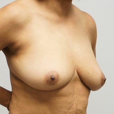 Breast Augmentation with Mastopexy Gallery - Patient 67095385 - Image 1