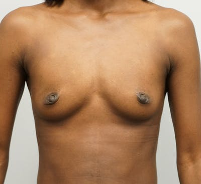 Breast Augmentation Gallery - Patient 67095981 - Image 1