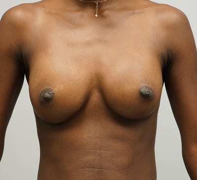 Breast Augmentation Gallery - Patient 67095981 - Image 2