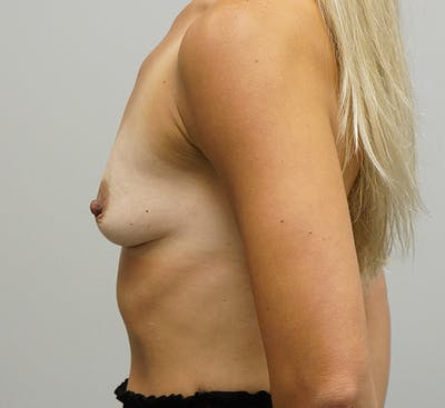 Breast Augmentation Gallery - Patient 67095982 - Image 1