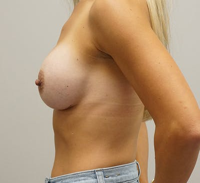 Breast Augmentation Gallery - Patient 67095982 - Image 2