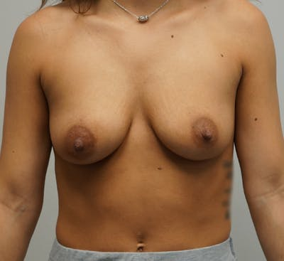 Breast Augmentation Gallery - Patient 67095983 - Image 1
