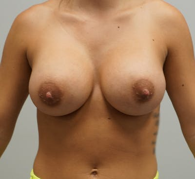 Breast Augmentation Gallery - Patient 67095983 - Image 2