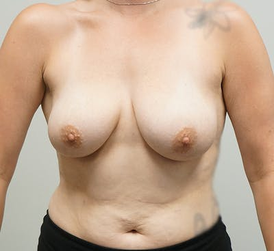 Breast Augmentation Gallery - Patient 67095984 - Image 1