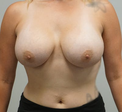 Breast Augmentation Gallery - Patient 67095984 - Image 2