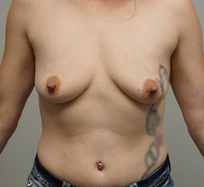Breast Augmentation Gallery - Patient 67095985 - Image 1